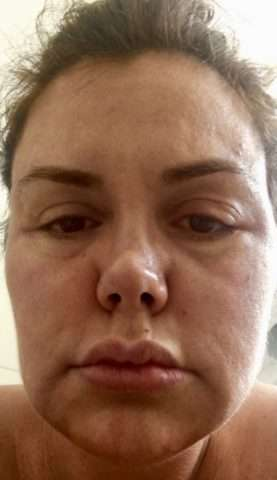 Renata-Banhara-acima-do-peso-durante-o-tratamento-medico-Im.001-e1531533784321 Title category