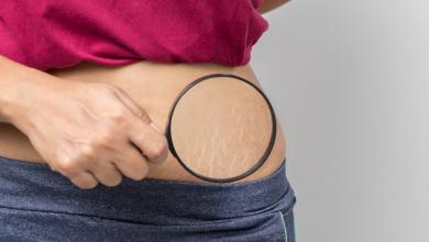 Como melhorar as estrias em até 80% com tratamentos avançados! 7