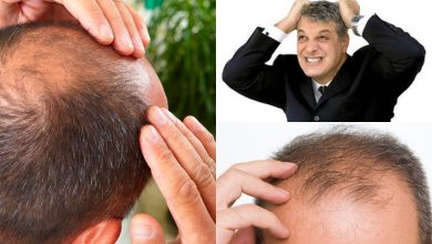 Dr. Thiago Bianco fala sobre essa doença que pode causar calvície