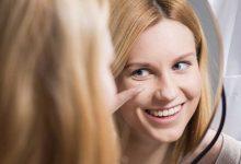 Adaptação de lentes de contato é ato médico 10
